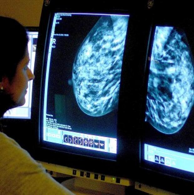 Mid Devon Star: Treatment of breast cancer must also involve women being given information on fertility, a charity said