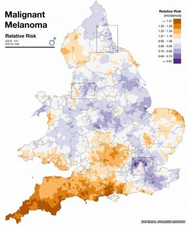 Malignant melanoma map shows Cornwall and Devon's high risk of skin cancer
