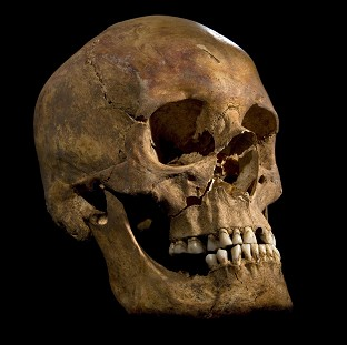The skull of King Richard III, as distant relatives await a ruling over where the monarch's remains should be reburied