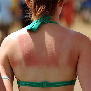 Experts have stressed the dangers of sunburn after a poll found under-18s are still using sunbeds